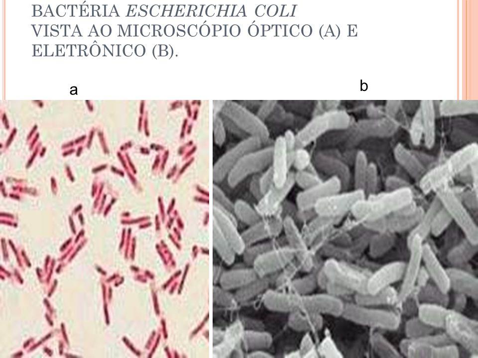 BACTÉRIA ESCHERICHIA COLI VISTA AO MICROSCÓPIO ÓPTICO (A) E ELETRÔNICO (B). a b