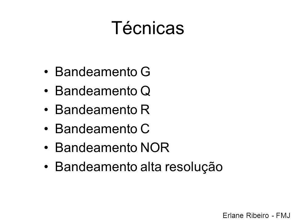 Técnicas Bandeamento G Bandeamento Q Bandeamento R Bandeamento C Bandeamento NOR Bandeamento alta resolução Erlane Ribeiro - FMJ