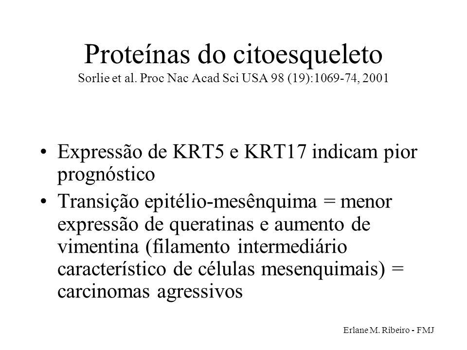 Erlane M. Ribeiro - FMJ Proteínas do citoesqueleto Sorlie et al. Proc Nac Acad Sci USA 98 (19):1069-74, 2001 Expressão de KRT5 e KRT17 indicam pior pr