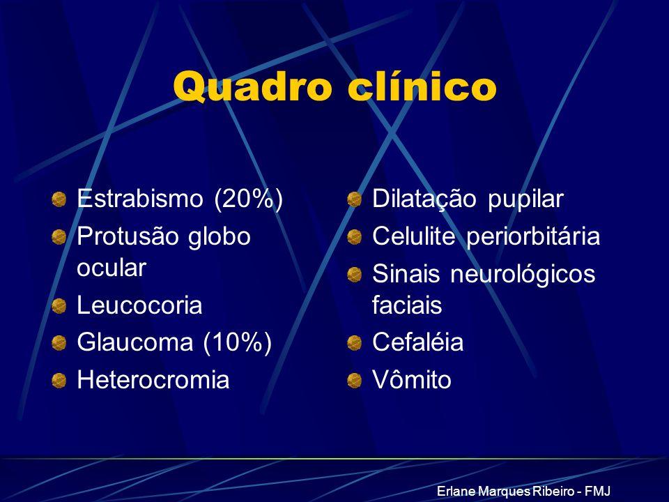 Erlane Marques Ribeiro - FMJ Quadro clínico Estrabismo (20%) Protusão globo ocular Leucocoria Glaucoma (10%) Heterocromia Dilatação pupilar Celulite p