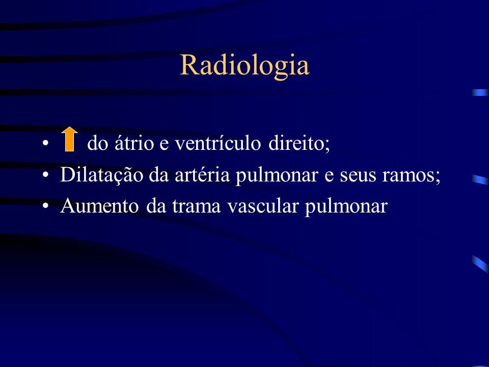 Radiologia do átrio e ventrículo direito; Dilatação da artéria pulmonar e seus ramos; Aumento da trama vascular pulmonar