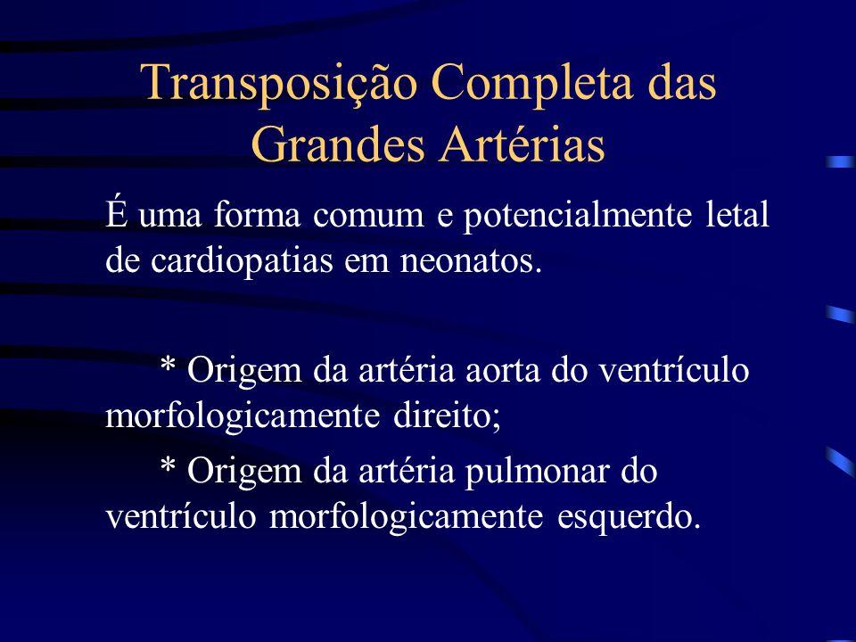 Transposição Completa das Grandes Artérias É uma forma comum e potencialmente letal de cardiopatias em neonatos.