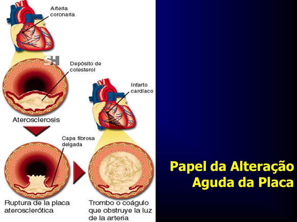 Papel da Alteração Aguda da Placa