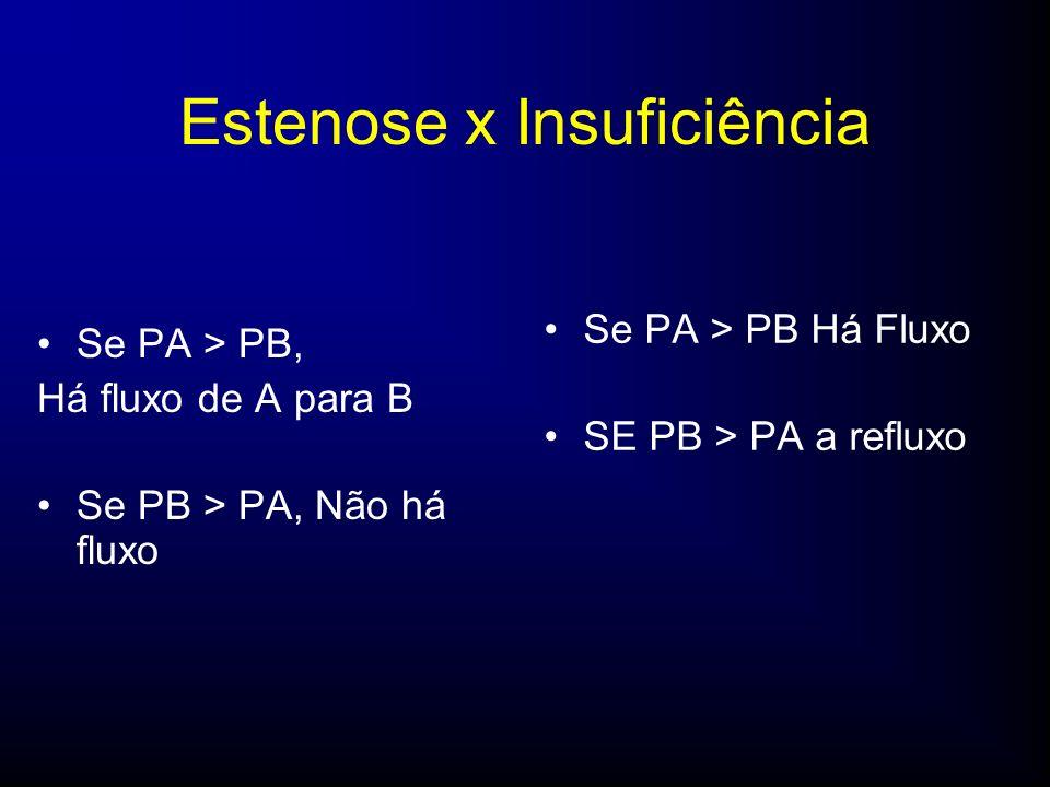 Estenose x Insuficiência Se PA > PB, Há fluxo de A para B Se PB > PA, Não há fluxo Se PA > PB Há Fluxo SE PB > PA a refluxo