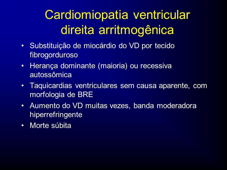 Cardiomiopatia ventricular direita arritmogênica Substituição de miocárdio do VD por tecido fibrogorduroso Herança dominante (maioria) ou recessiva autossômica Taquicardias ventriculares sem causa aparente, com morfologia de BRE Aumento do VD muitas vezes, banda moderadora hiperrefringente Morte súbita