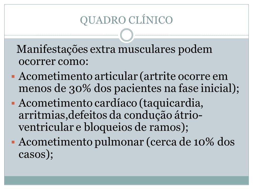 QUADRO CLÍNICO Manifestações extra musculares podem ocorrer como: Acometimento articular (artrite ocorre em menos de 30% dos pacientes na fase inicial