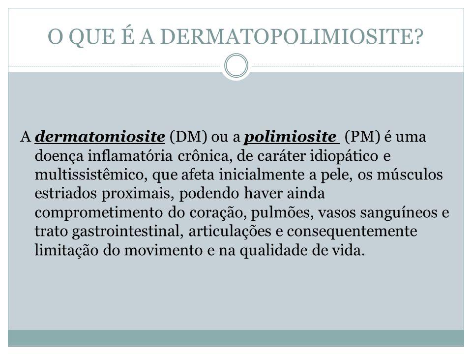 O QUE É A DERMATOPOLIMIOSITE? A dermatomiosite (DM) ou a polimiosite (PM) é uma doença inflamatória crônica, de caráter idiopático e multissistêmico,