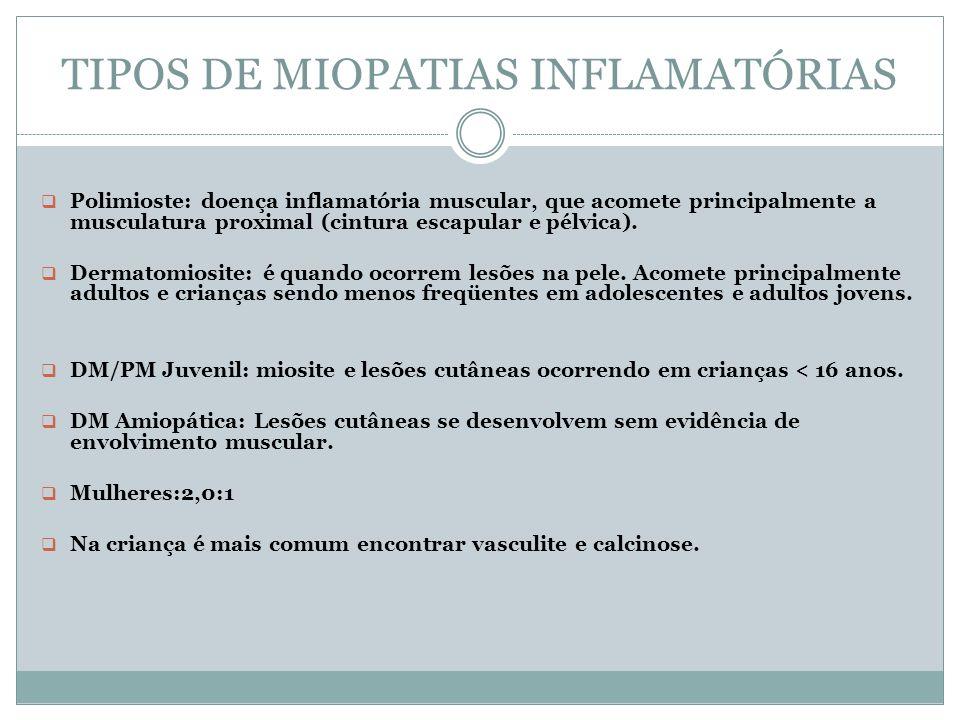 TIPOS DE MIOPATIAS INFLAMATÓRIAS Polimioste: doença inflamatória muscular, que acomete principalmente a musculatura proximal (cintura escapular e pélv