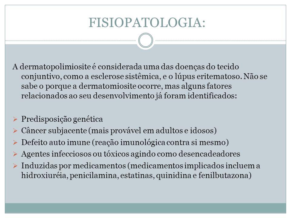 FISIOPATOLOGIA: A dermatopolimiosite é considerada uma das doenças do tecido conjuntivo, como a esclerose sistêmica, e o lúpus eritematoso. Não se sab