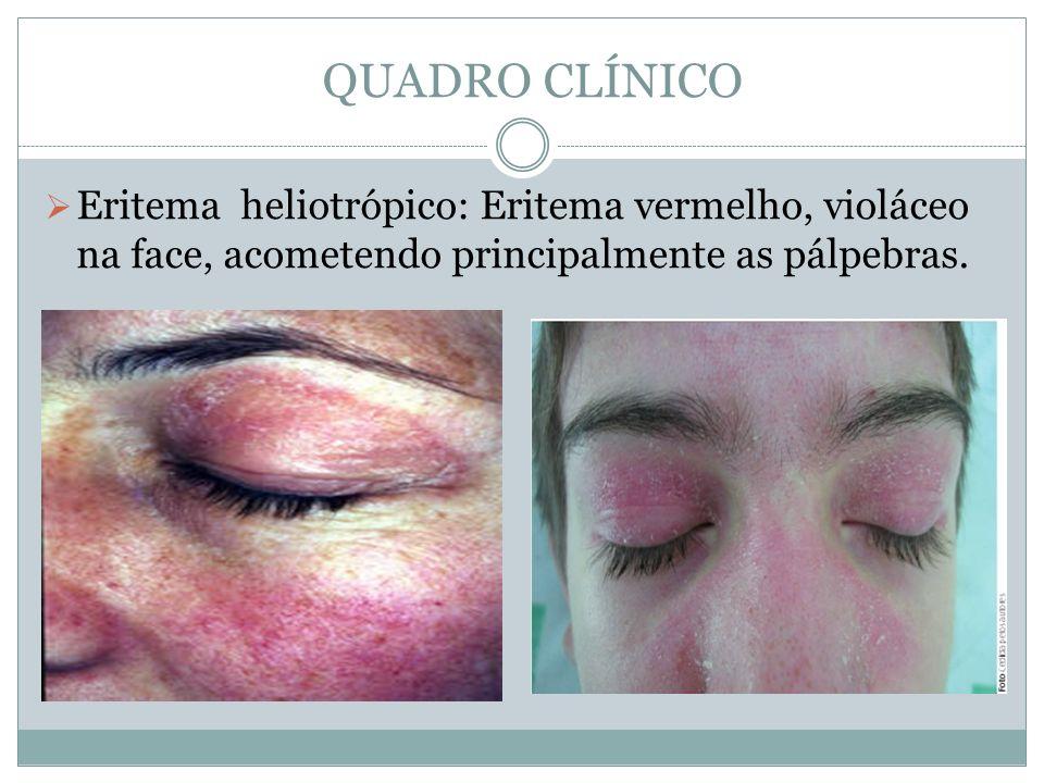 QUADRO CLÍNICO Eritema heliotrópico: Eritema vermelho, violáceo na face, acometendo principalmente as pálpebras.