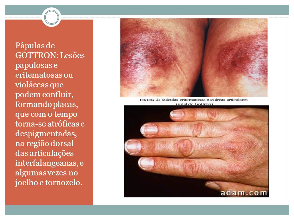 Pápulas de GOTTRON: Lesões papulosas e eritematosas ou violáceas que podem confluir, formando placas, que com o tempo torna-se atróficas e despigmenta
