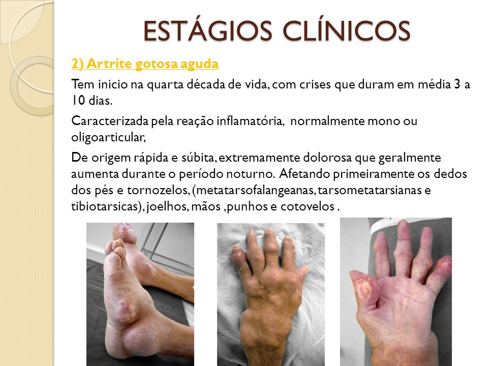 ESTÁGIOS CLÍNICOS 2) Artrite gotosa aguda Tem inicio na quarta década de vida, com crises que duram em média 3 a 10 dias. Caracterizada pela reação in