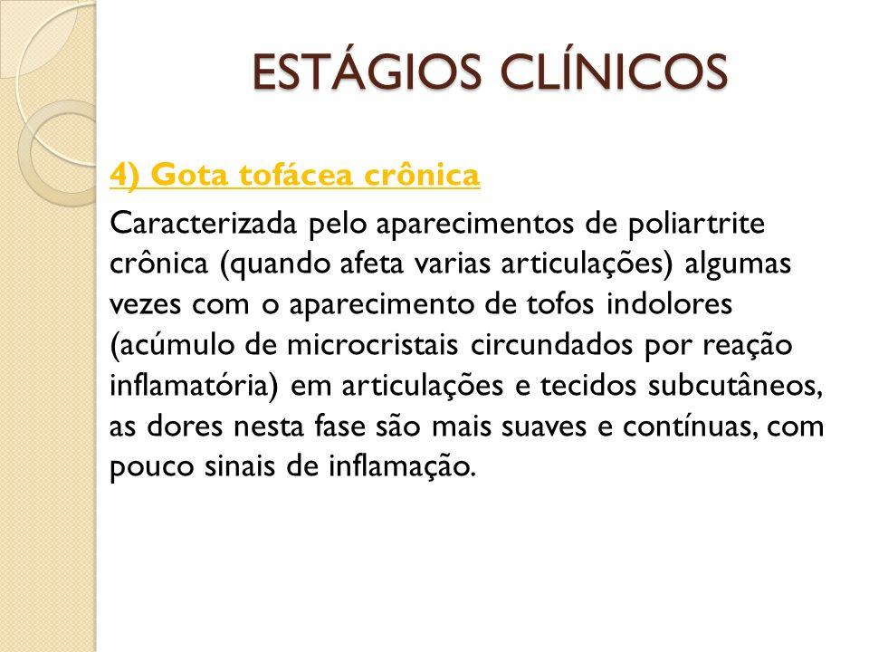 ESTÁGIOS CLÍNICOS 4) Gota tofácea crônica Caracterizada pelo aparecimentos de poliartrite crônica (quando afeta varias articulações) algumas vezes com o aparecimento de tofos indolores (acúmulo de microcristais circundados por reação inflamatória) em articulações e tecidos subcutâneos, as dores nesta fase são mais suaves e contínuas, com pouco sinais de inflamação.