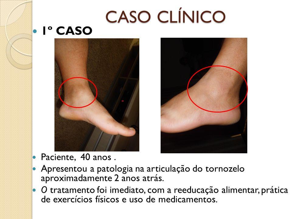 CASO CLÍNICO 1º CASO Paciente, 40 anos. Apresentou a patologia na articulação do tornozelo aproximadamente 2 anos atrás. O tratamento foi imediato, co