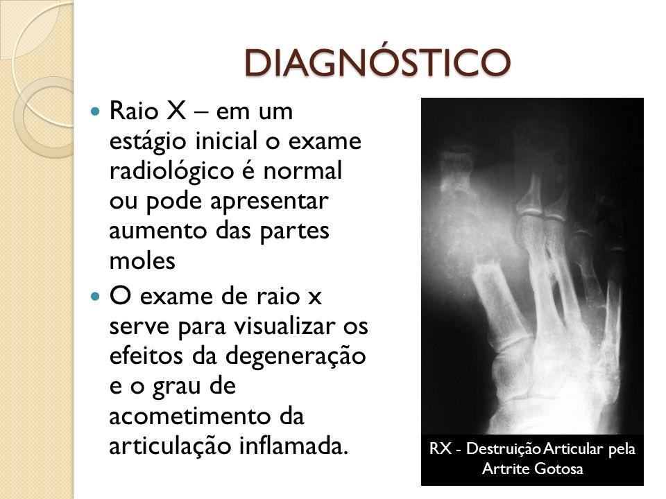 DIAGNÓSTICO Raio X – em um estágio inicial o exame radiológico é normal ou pode apresentar aumento das partes moles O exame de raio x serve para visualizar os efeitos da degeneração e o grau de acometimento da articulação inflamada.