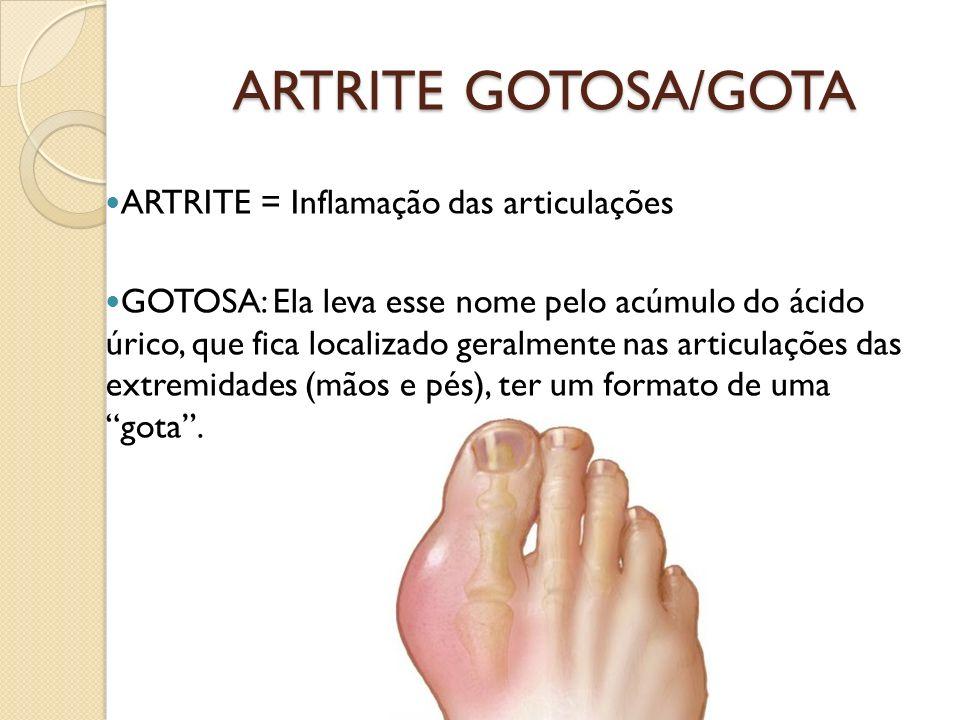 ARTRITE GOTOSA/GOTA ARTRITE = Inflamação das articulações GOTOSA: Ela leva esse nome pelo acúmulo do ácido úrico, que fica localizado geralmente nas a