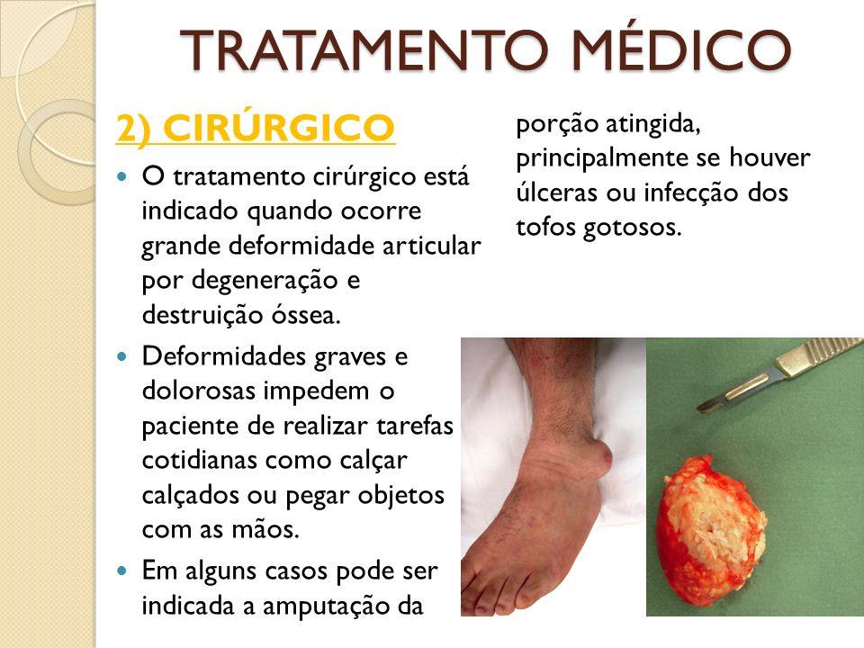 TRATAMENTO MÉDICO 2) CIRÚRGICO O tratamento cirúrgico está indicado quando ocorre grande deformidade articular por degeneração e destruição óssea.