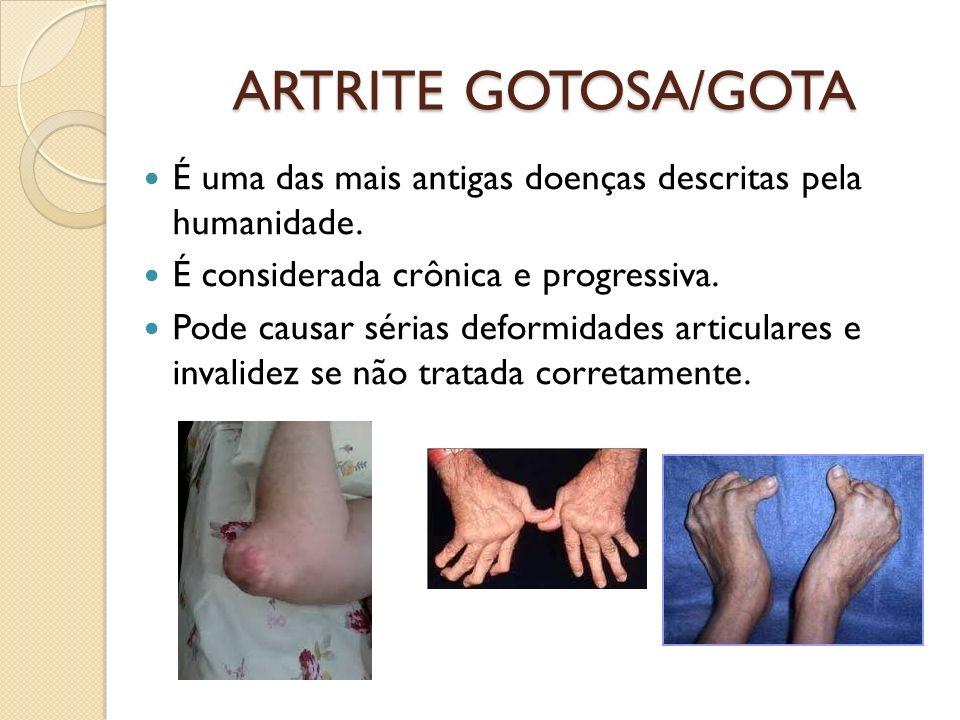 ARTRITE GOTOSA/GOTA É uma das mais antigas doenças descritas pela humanidade. É considerada crônica e progressiva. Pode causar sérias deformidades art