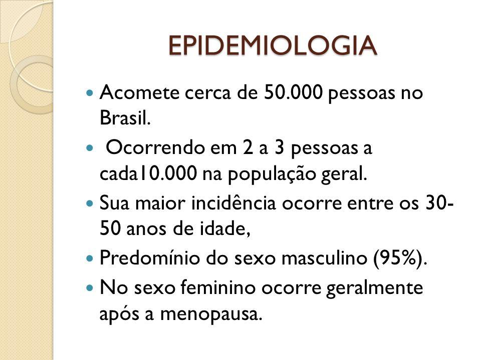 EPIDEMIOLOGIA Acomete cerca de 50.000 pessoas no Brasil. Ocorrendo em 2 a 3 pessoas a cada10.000 na população geral. Sua maior incidência ocorre entre