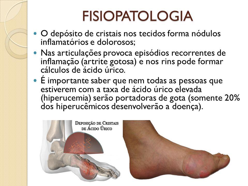 FISIOPATOLOGIA O depósito de cristais nos tecidos forma nódulos inflamatórios e dolorosos; Nas articulações provoca episódios recorrentes de inflamação (artrite gotosa) e nos rins pode formar cálculos de ácido úrico.