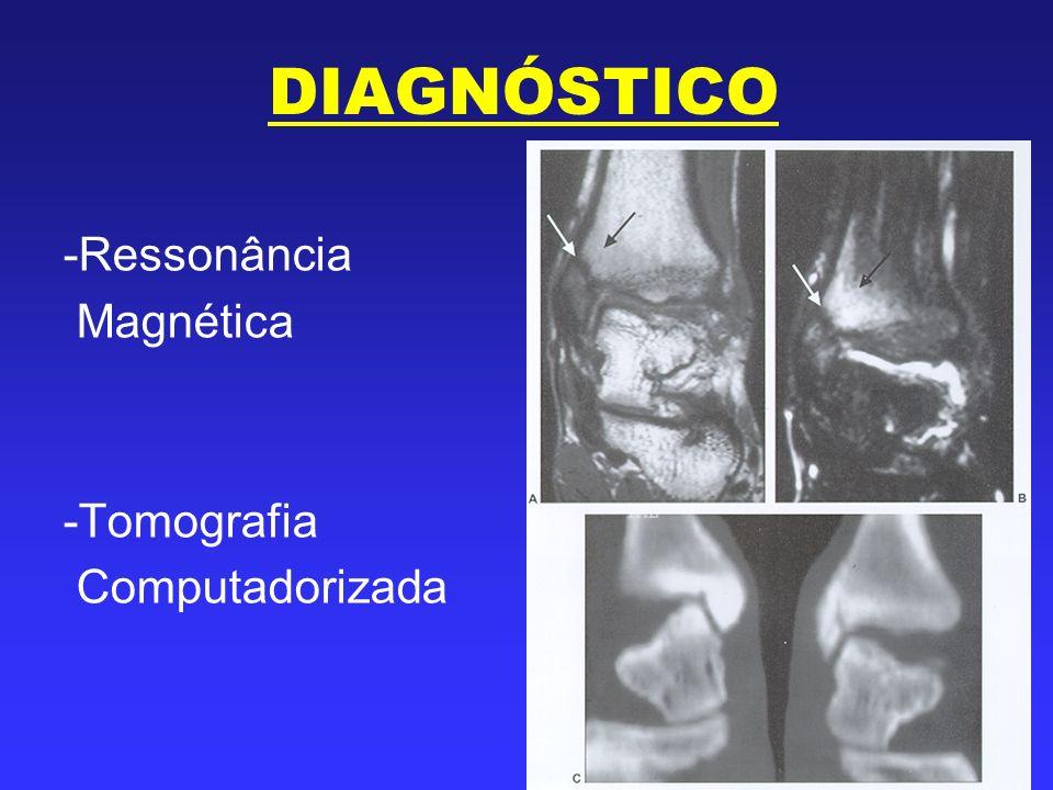 DIAGNÓSTICO -Ressonância Magnética -Tomografia Computadorizada