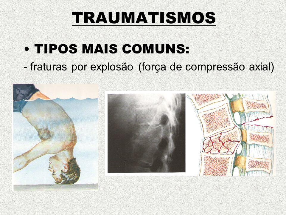 TRAUMATISMOS TIPOS MAIS COMUNS: - fraturas por explosão (força de compressão axial)