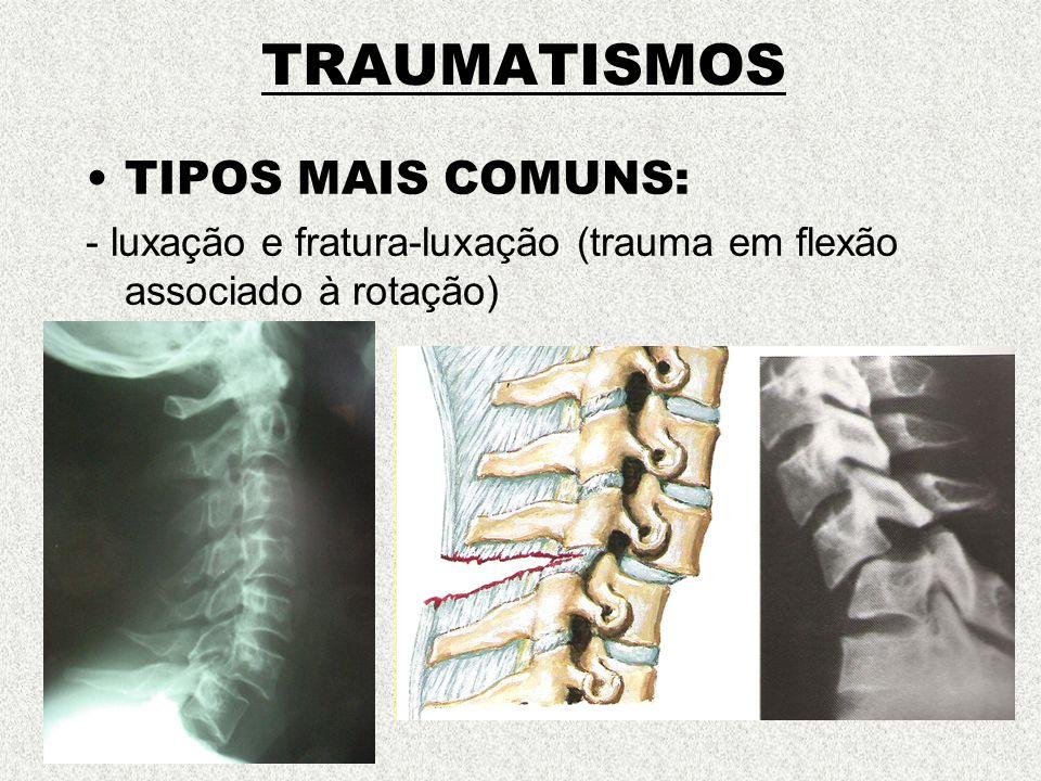 TRAUMATISMOS TIPOS MAIS COMUNS: - luxação e fratura-luxação (trauma em flexão associado à rotação)