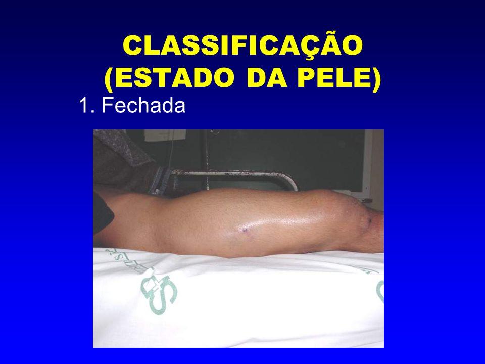 CLASSIFICAÇÃO (ESTADO DA PELE) 1. Fechada