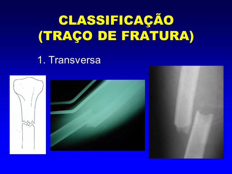 CLASSIFICAÇÃO (TRAÇO DE FRATURA) 2. Oblíqua