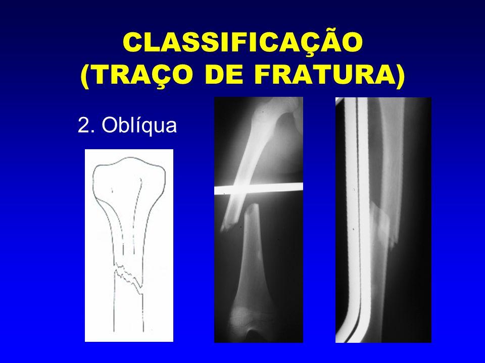 CLASSIFICAÇÃO (TRAÇO DE FRATURA) 3. Espiralada