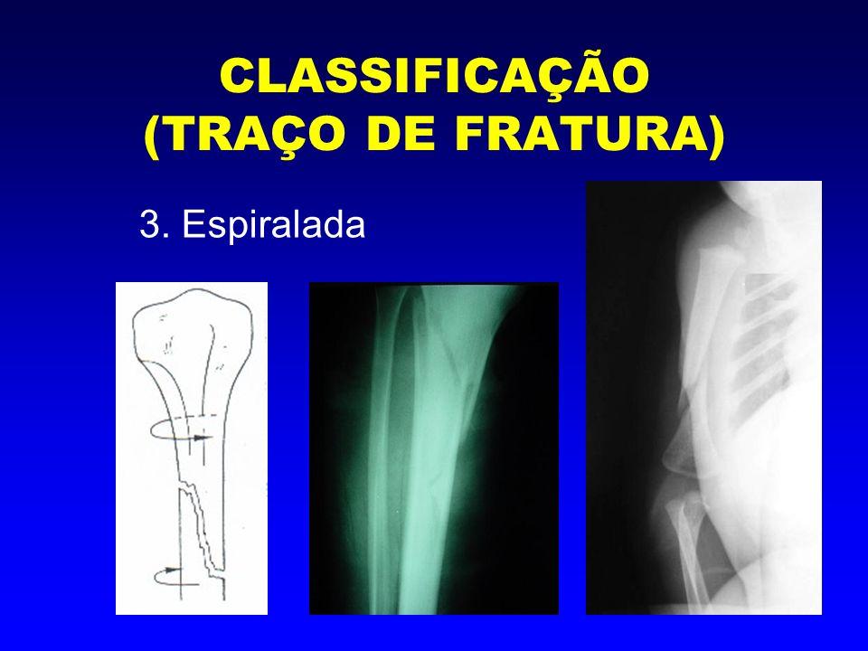 CLASSIFICAÇÃO (TRAÇO DE FRATURA) 4. Cominutiva