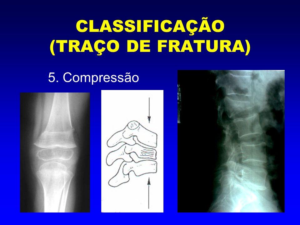 CLASSIFICAÇÃO (TRAÇO DE FRATURA) 6. Galho verde