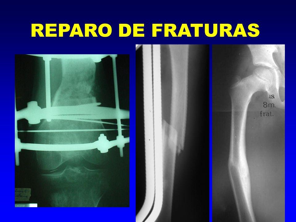 6- Estágio de Remodelação -atividade osteoclástica -remoção óssea REPARO DE FRATURAS