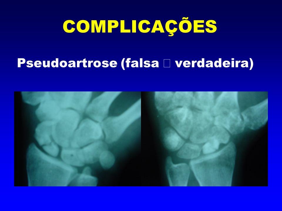 Pseudoartrose A falta de consolidação ou ( união dos ossos), pode ocorrer por vários fatores.