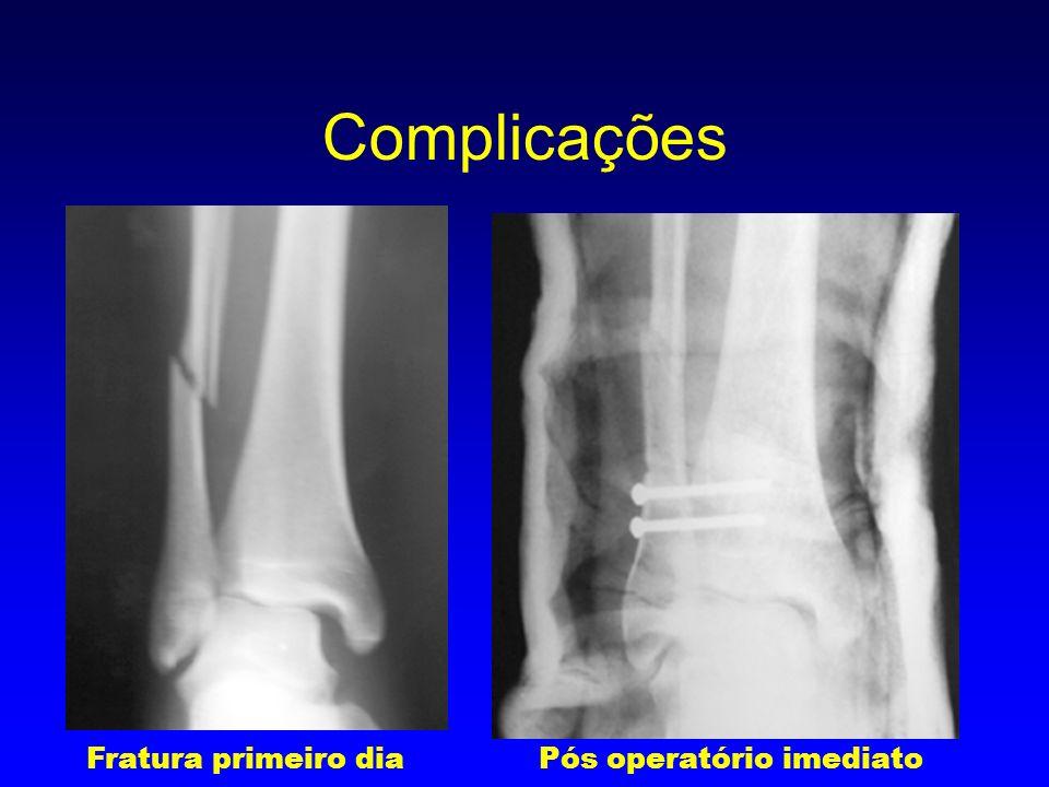 5 meses de pós-operatório um ano de pós-operatório