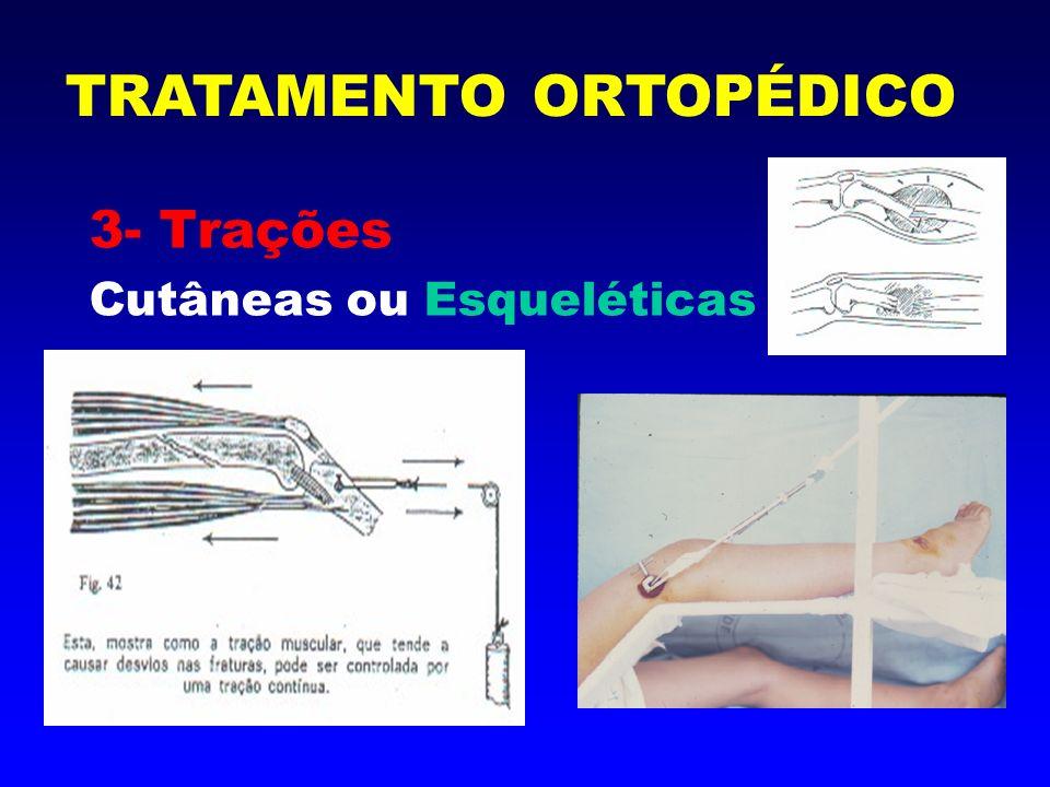 3- Trações Cutâneas ou Esqueléticas TRATAMENTO ORTOPÉDICO