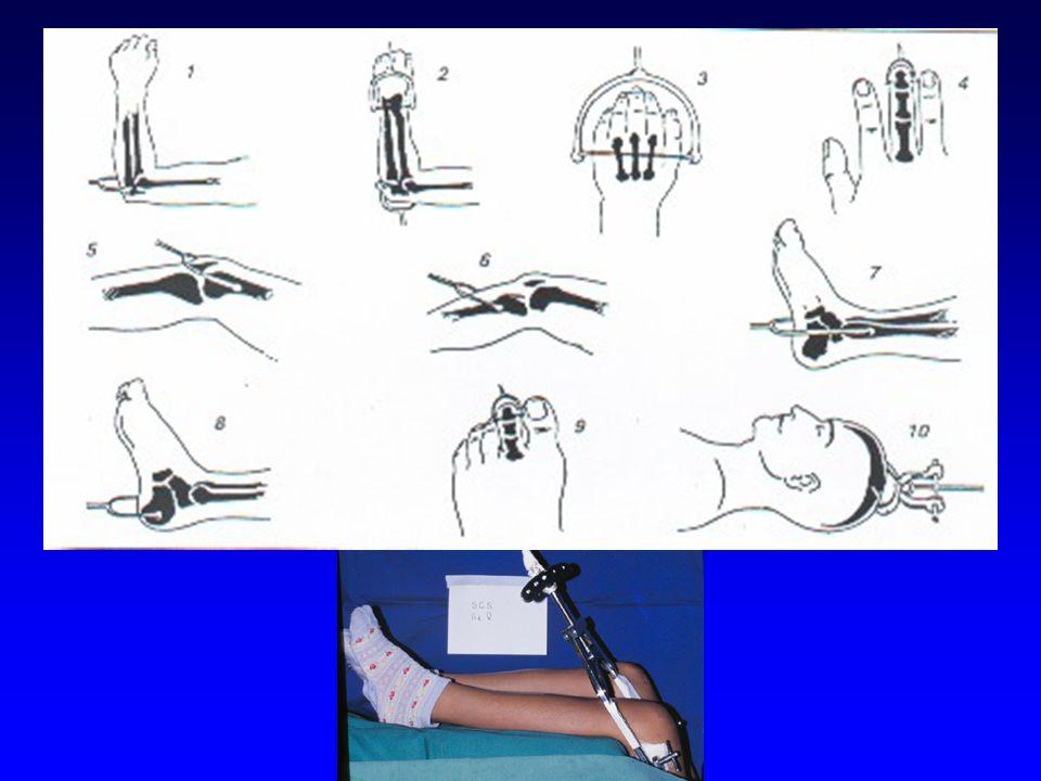 4- Osteossínteses -Internas - interfragmentar - de suporte - tutores -Externas - fixadores externos TRATAMENTO ORTOPÉDICO