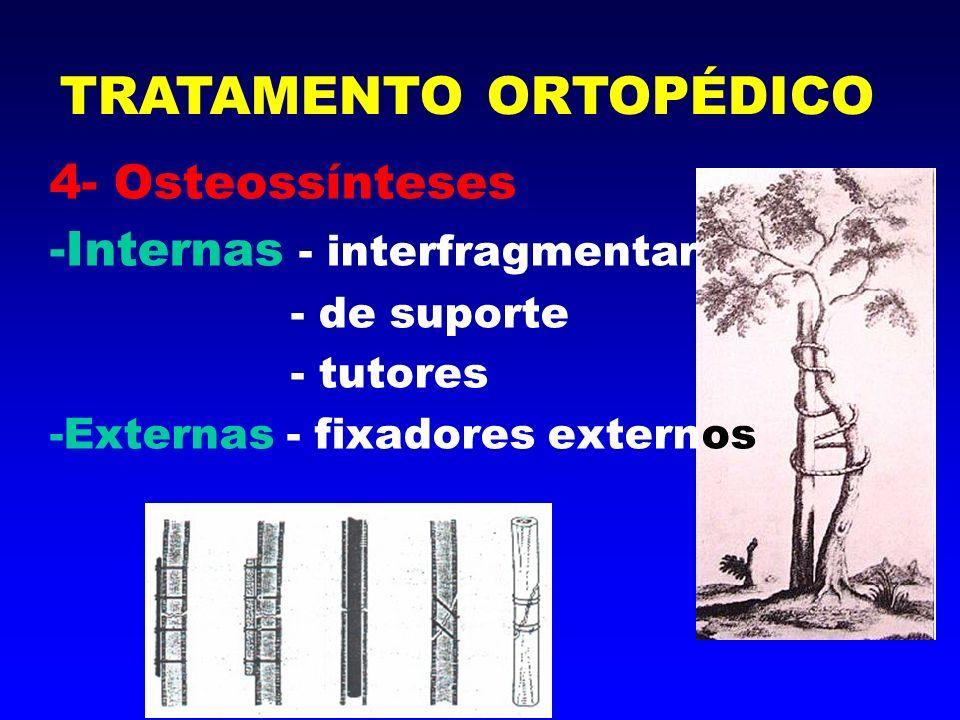Osteossínteses Internas - Interfragmentares TRATAMENTO ORTOPÉDICO