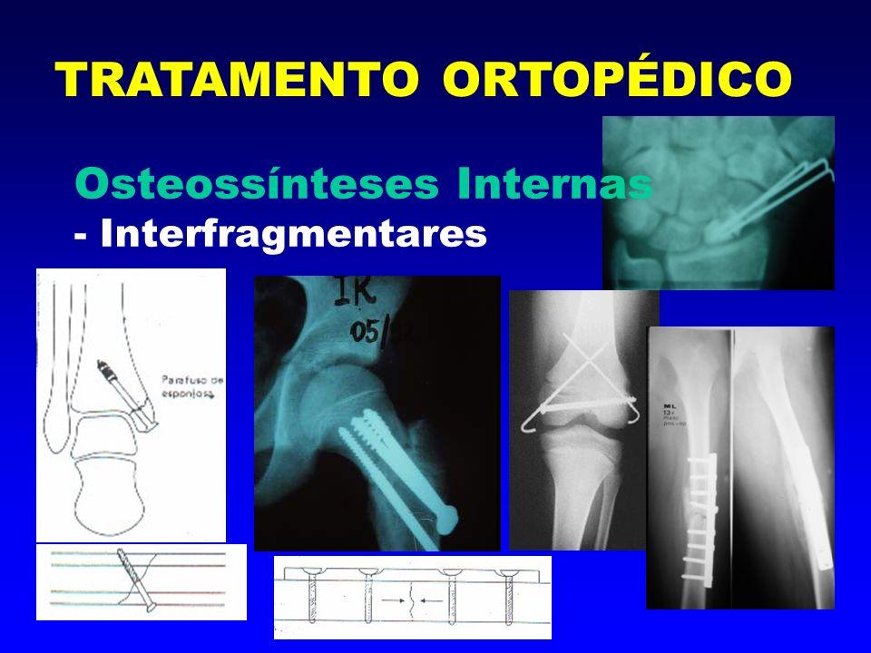 Osteossínteses Internas - De suporte TRATAMENTO ORTOPÉDICO