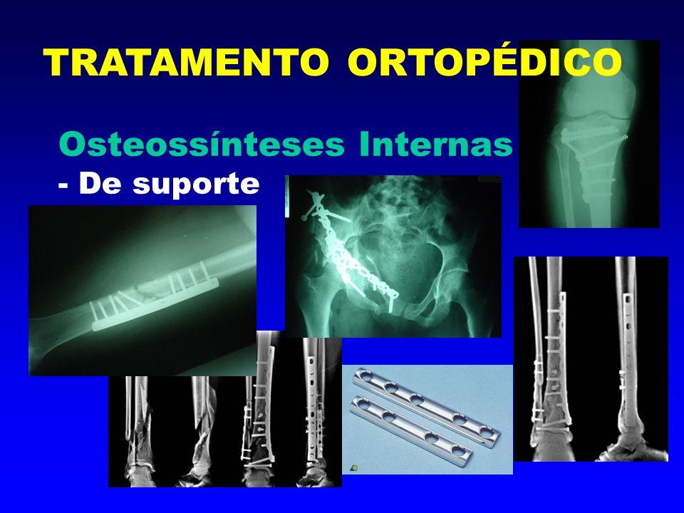 Osteossínteses Internas - Tutores TRATAMENTO ORTOPÉDICO