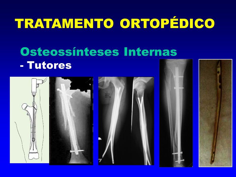Osteossínteses Externas - Fixadores Externos (linear, semi-circular, circular, Ilizarov) TRATAMENTO ORTOPÉDICO