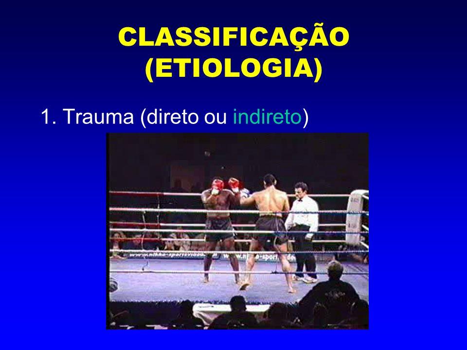 CLASSIFICAÇÃO (ETIOLOGIA) 2. Fadiga ou estresse