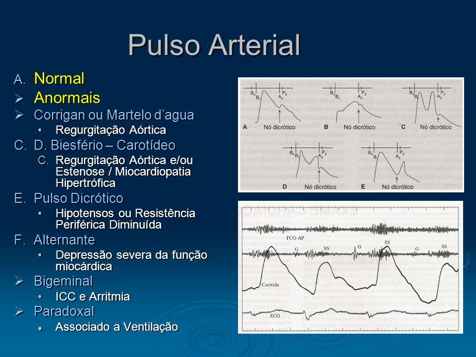 Pulso Arterial Determinantes Determinantes Volume de Ejeção do VE Volume de Ejeção do VE Velocidade de Ejeção Velocidade de Ejeção Complacência Relati