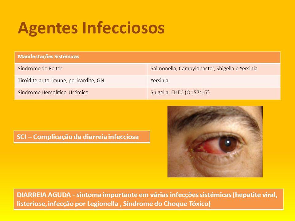 Agentes Infecciosos Manifestações Sistémicas Síndrome de ReiterSalmonella, Campylobacter, Shigella e Yersinia Tiroidite auto-imune, pericardite, GNYer