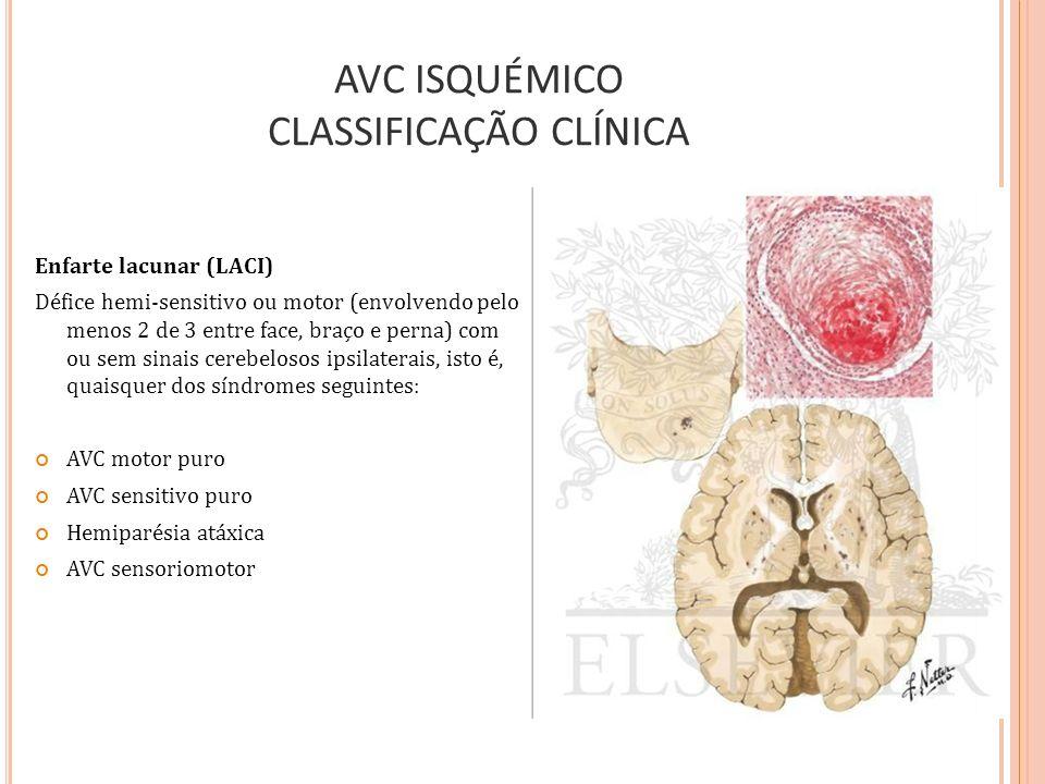 AVC ISQUÉMICO CLASSIFICAÇÃO CLÍNICA Enfarte lacunar (LACI) Défice hemi-sensitivo ou motor (envolvendo pelo menos 2 de 3 entre face, braço e perna) com