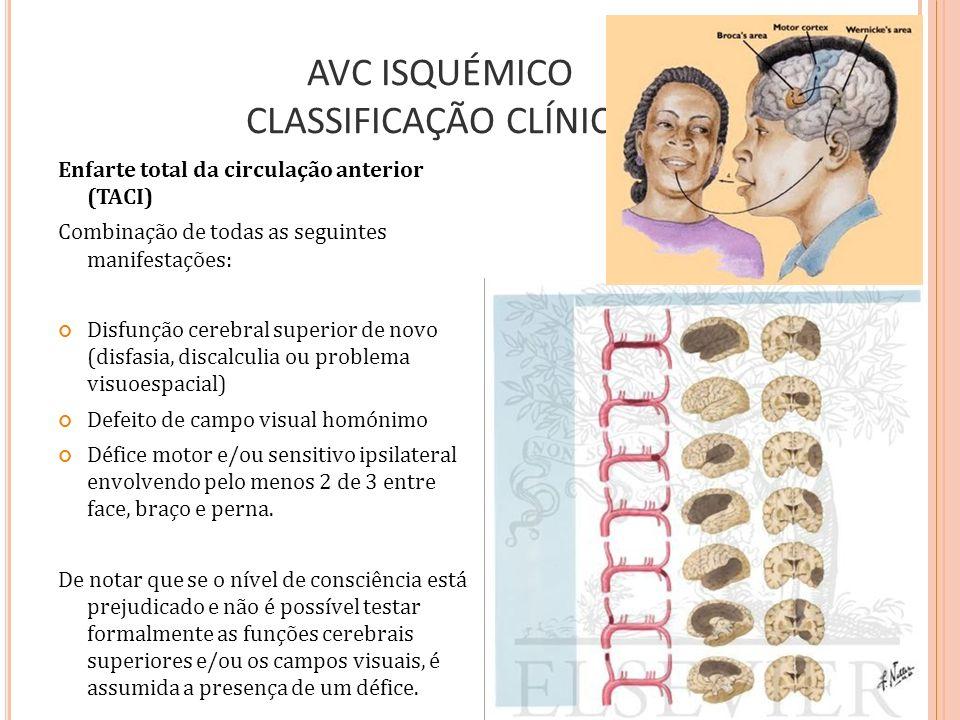 AVC ISQUÉMICO CLASSIFICAÇÃO CLÍNICA Enfarte total da circulação anterior (TACI) Combinação de todas as seguintes manifestações: Disfunção cerebral sup