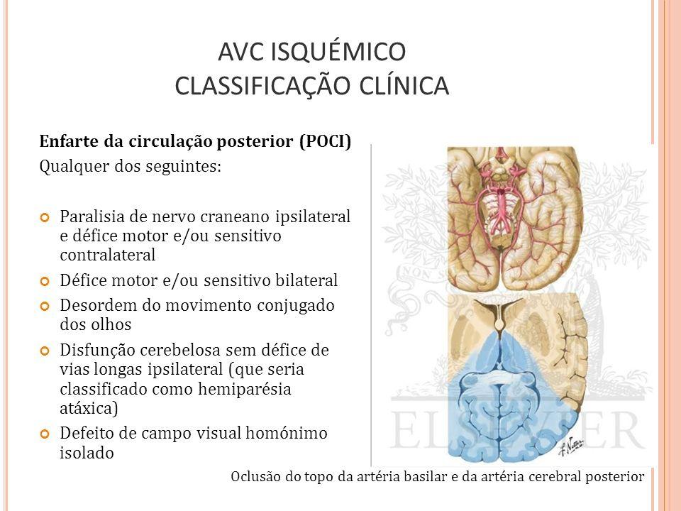 AVC ISQUÉMICO CLASSIFICAÇÃO CLÍNICA Enfarte da circulação posterior (POCI) Qualquer dos seguintes: Paralisia de nervo craneano ipsilateral e défice mo