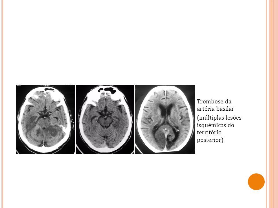 Trombose da artéria basilar (múltiplas lesões isquémicas do território posterior)