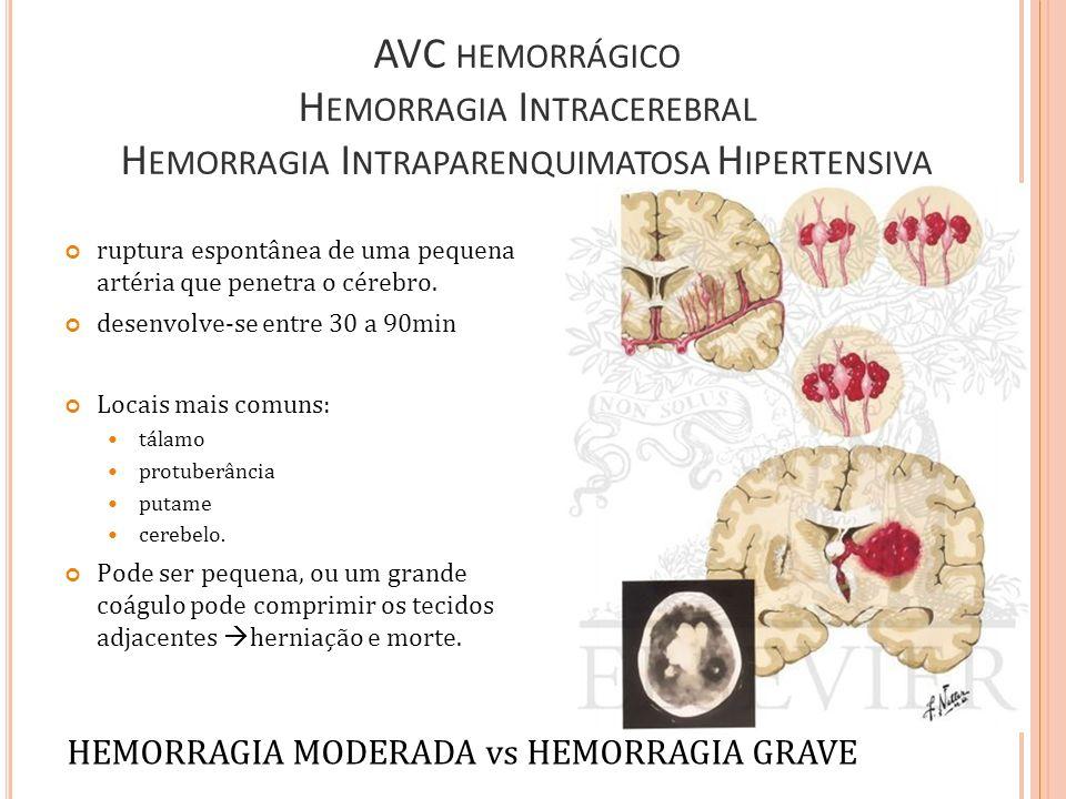 AVC HEMORRÁGICO H EMORRAGIA I NTRACEREBRAL H EMORRAGIA I NTRAPARENQUIMATOSA H IPERTENSIVA ruptura espontânea de uma pequena artéria que penetra o cére