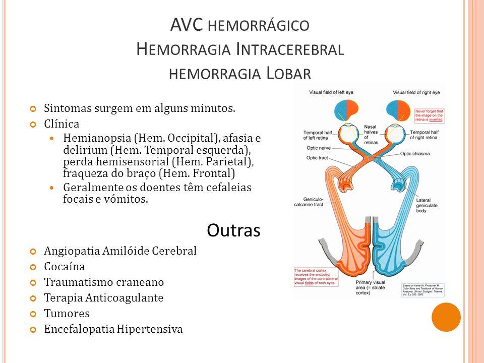 Sintomas surgem em alguns minutos. Clínica Hemianopsia (Hem. Occipital), afasia e delirium (Hem. Temporal esquerda), perda hemisensorial (Hem. Parieta